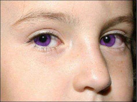 purple eye color purple eyes causes purple eye color disease makeup