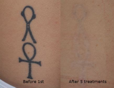 tattoo removal newtown best 25 regret ideas on quote