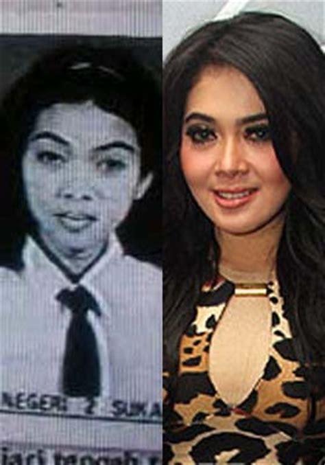 foto dewasa aurel hermansyah foto perbandingan sebelum besar dan warta malam artis cantik karena operasi plastik
