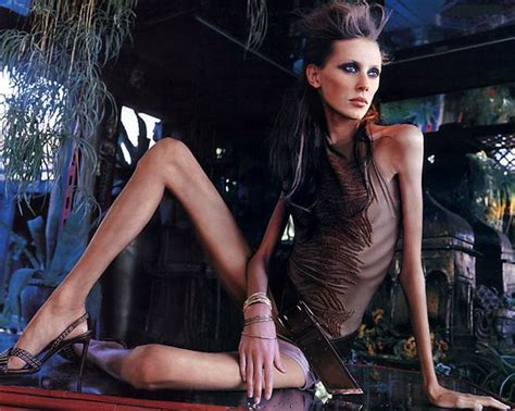 Carolina Reston Second Supermodel Dies Of Anorexia by Models And Disorders Is There A Link