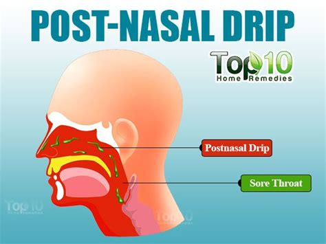 home remedies for post nasal drip top 10 home remedies