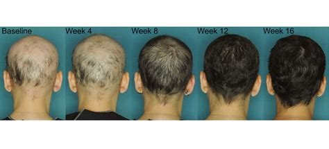 latest news and research on hair loss new study confirms jak3 effective in alopecia areata