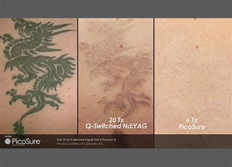 laser tattoo removal specialist park slope brooklyn ny