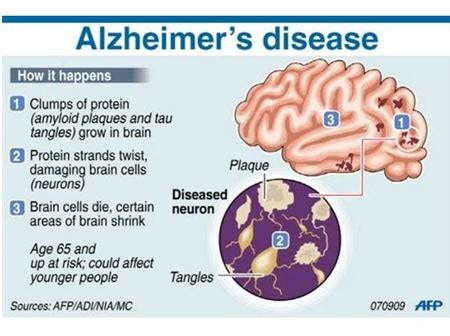 preventing alzheimer s alzheimer s factors prevention steps and foods that prevent or alzheimer s recipes for alzheimer s prevention diet essential spices and herbs books study says this vitamin combination may help in alzheimer