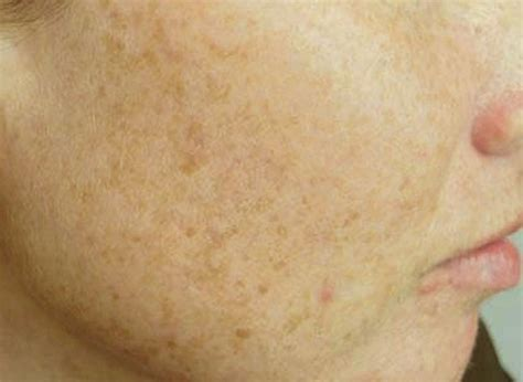 spot causes liver spots pictures skin causes treatment