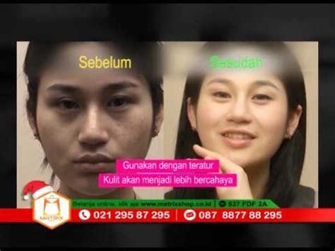 Pembersih Muka alat pembersih wajah kes promo