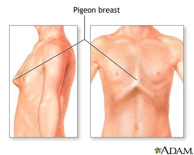 Breast Pigeon bowed chest pigeon breast medlineplus