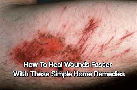 7 Remedies To Help A Wound Heal Quicker by How To Heal Wounds Faster With These Simple Home Remedies