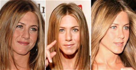 Aniston Second Nose For More Baby by 10 Cirurgias Pl 225 Sticas Que Deram Certo No Mundo Das