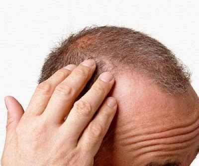follicolite testa erkeklerde kellik sa 231 d 246 k 252 lmesi ve tedavisi erkek