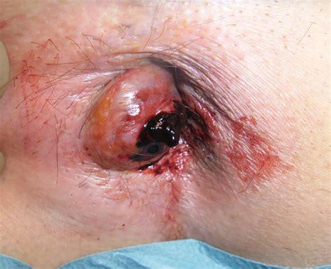 emorroidi interne congeste h 228 morrhoide thrombosiert doccheck pictures