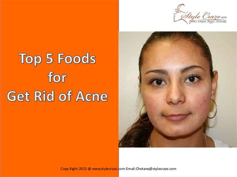 15 Top Foods To Get Rid Of Acne by Top 5 Foods To Get Rid Of Acne