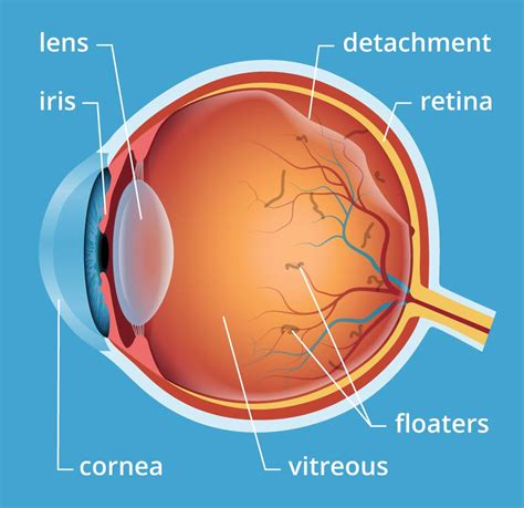 flashes of light in eye and floaters eye floaters laser treatment symptoms causes