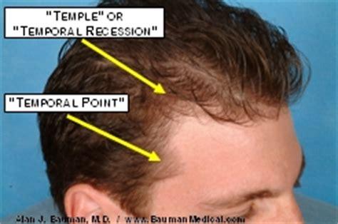 female temporal hair recession male pattern baldness bauman medical group