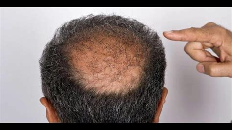 male pattern baldness youtube hair loss treatment male pattern baldness cure youtube