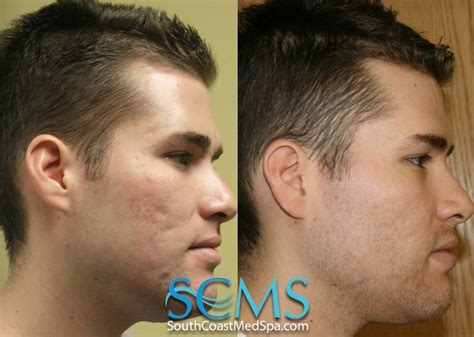 10 best laser acne scar removal images on pinterest acne