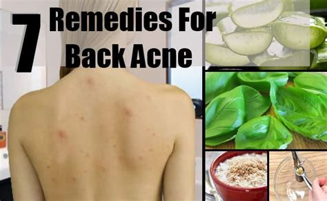 treating back acne back acne remedies cure for back