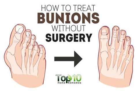 how to a without treats how to treat bunions without surgery page 3 of 3 top 10 home remedies