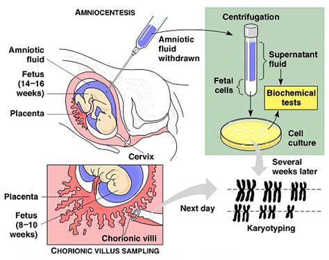 amniocentesis test amniocentesis vs chorionic villus sling
