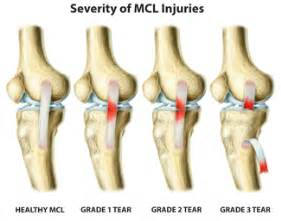 Knee injury ligaments part 3 exercises for injuries healty living