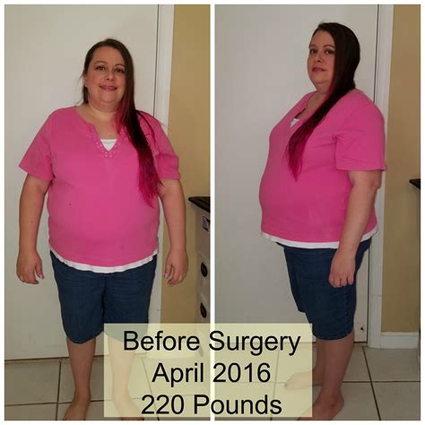 weight loss 6 months after gastric sleeve average weight loss 3 months after gastric sleeve 11
