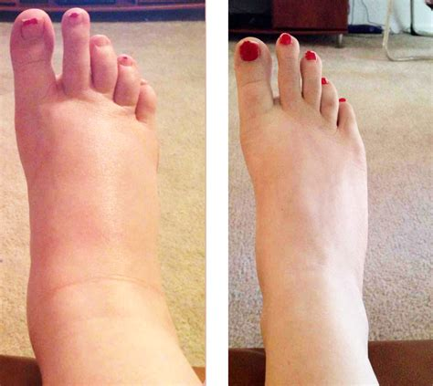 how to treat swollen feet after c section how long will my feet be swollen after c section 28