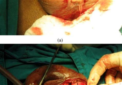 epididymo orchitis causes symptoms treatment epididymo