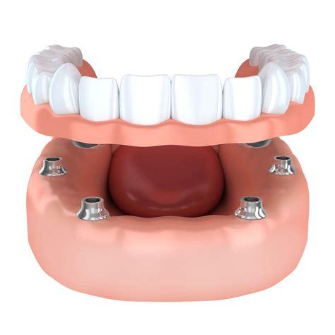 Tooth implantation, denture   Nebraska Family Dentistry