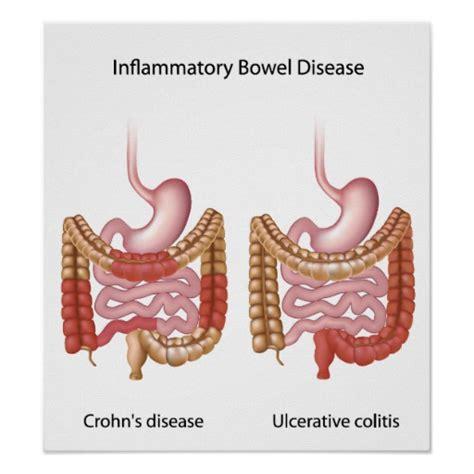 Stool Disease by Inflammatory Bowel Disease Ibd Poster Zazzle