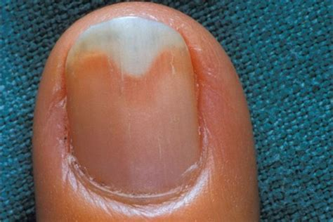 nails lifting from nail bed toenail lifting off nail bed pictures photos