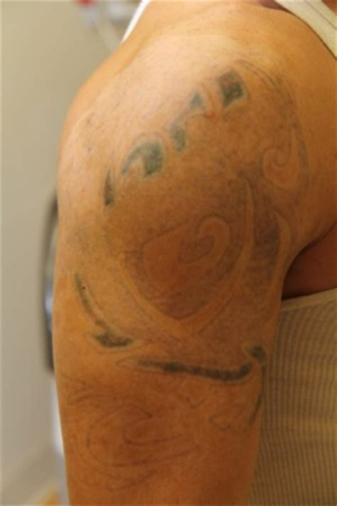sugar land laser tattoo removal laser removal before and after pictures