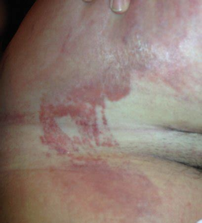 c section scar infection pictures c section infection www pixshark com images galleries