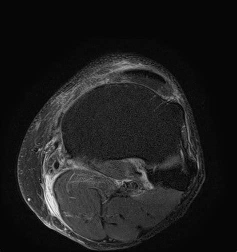 cyst burst ruptured baker s cyst radiology radiopaedia org