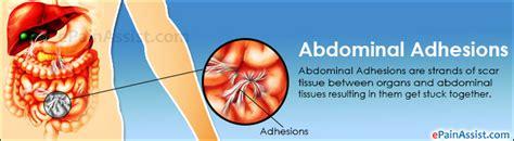 abdominal adhesions treatment prevention diet symptoms diagnosis
