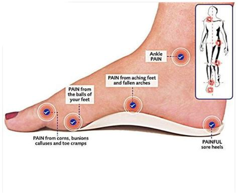 Ft Sintesis Flatshoes orthotic foot support insole for flat heels arches relief ebay