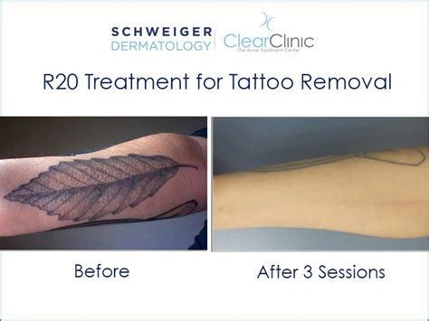 dermatology tattoo removal r20 laser removal technique