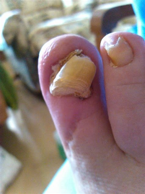 infected nail img 20120322 110829 footiq