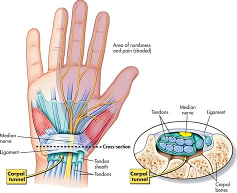 carpal tunnel cross section the wrist and carpal tunnel corewalking