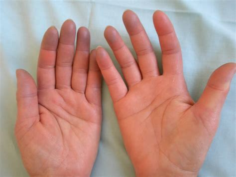 sindrome di best raynaud phenomenon asphyxial phase doccheck pictures