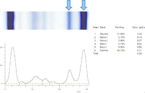 s protein electrophoresis protein electrophoresis www pixshark images