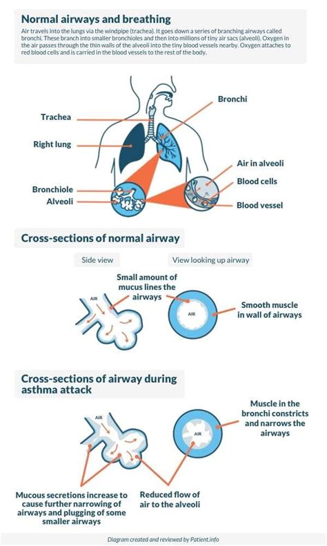 asthma diagram asthma symptoms causes and treatment patient
