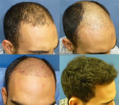 transplant hair second round draft hair transplantation surgery long hairstyles