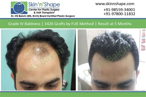 hair transplant calculator hair transplant graft calculator hair transplant graft