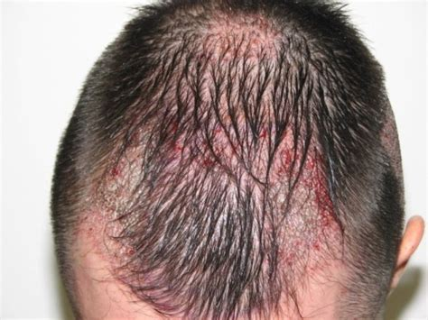 propecia or rogaine for frontal hair loss receding hairline resultate dr patrick mwamba haartransplantation
