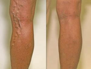 how to choose a varicose vein doctor colorado skin amp vein