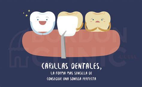 precios de fundas dentales carillas dentales precio tipos de carillas dentales