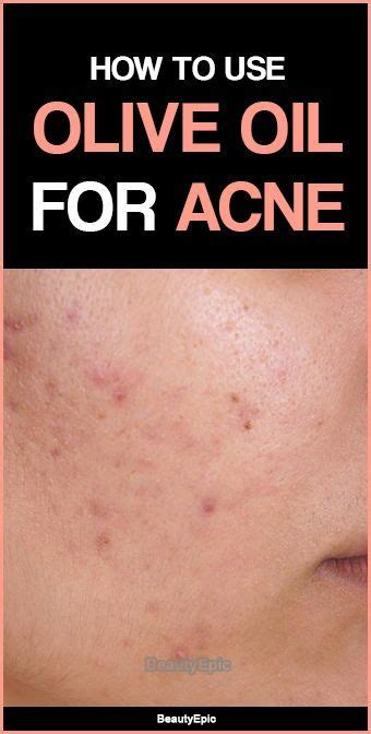 Olive Acne by Olive For Acne How Does It Work Diy Olive