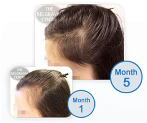 female pattern hair loss during pregnancy hair loss in women female hair loss