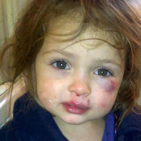 Imagenes Fuertes De Niños Maltratados | violencia