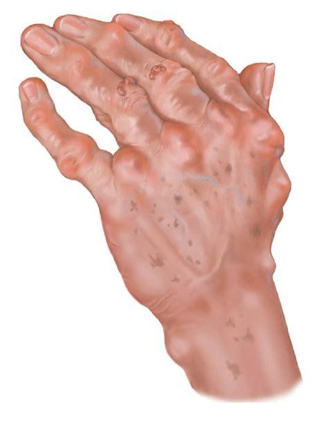 arthritis definition of arthritis by medical dictionary complications of rheumatoid arthritis mary s arthritis